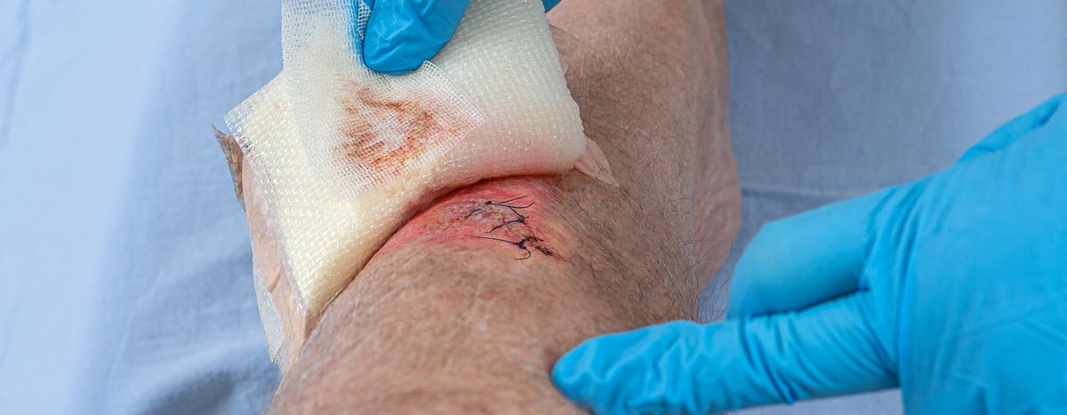 Wound Care Documentation